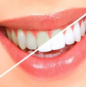Tooth Color Restorations