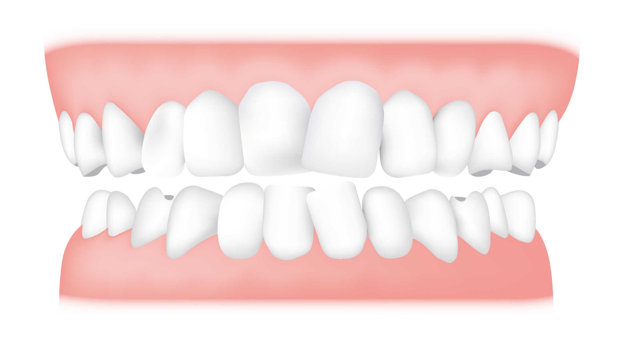 Teeth Crowding