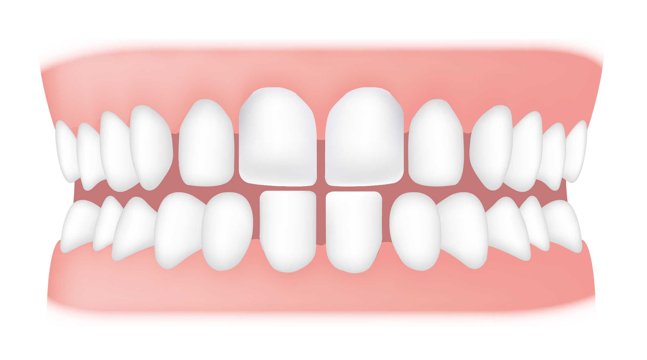Spacing between tooth