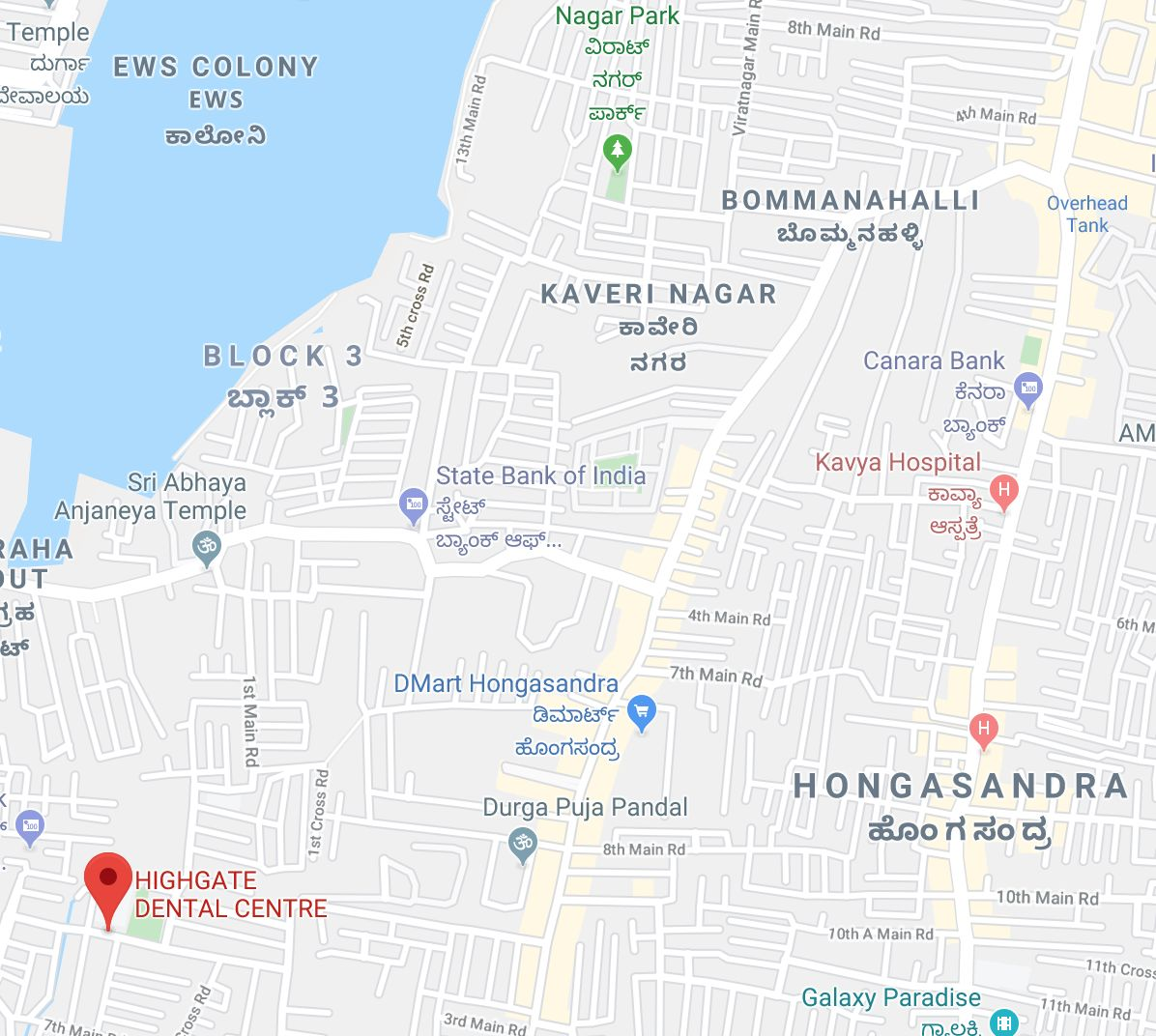 Dentist for RCT in Bommanahalli