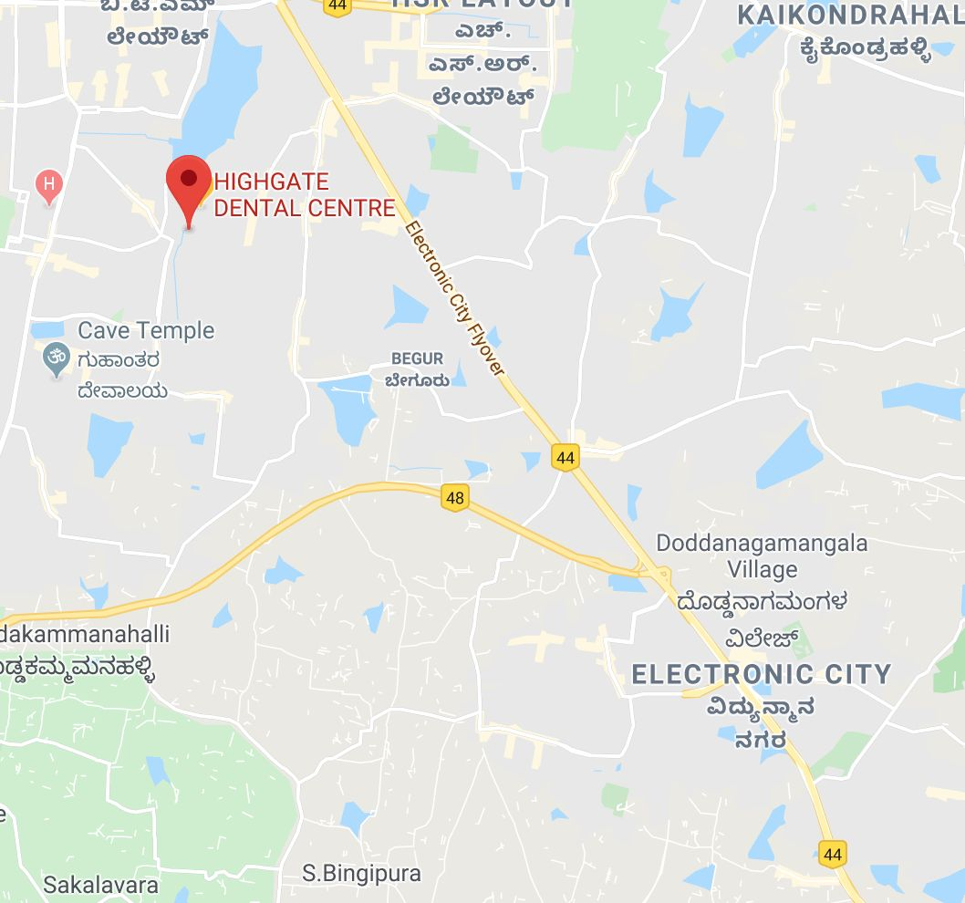 Dentist for RCT in Electronic City