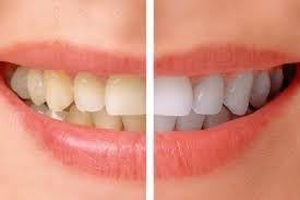 Dentist for Teeth Whitening in JP Nagar