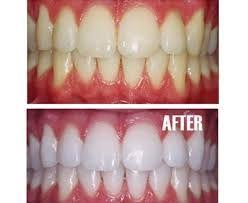Dentist for Teeth Whitening in Bannerghatta Road