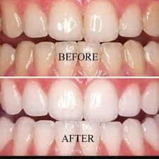 Dentist for Teeth Whitening in HSR Layout