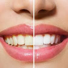 Dentist for Teeth Whitening in Arekere