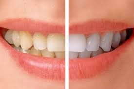 Dentist for Teeth Whitening in Jayanagar