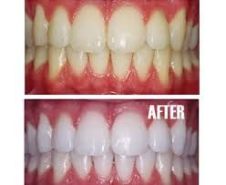 Dentist for Teeth Whitening in Electronic City