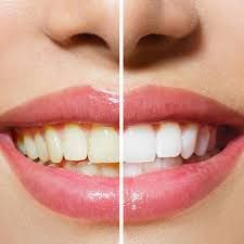 Dentist for Teeth Whitening in Bangalore
